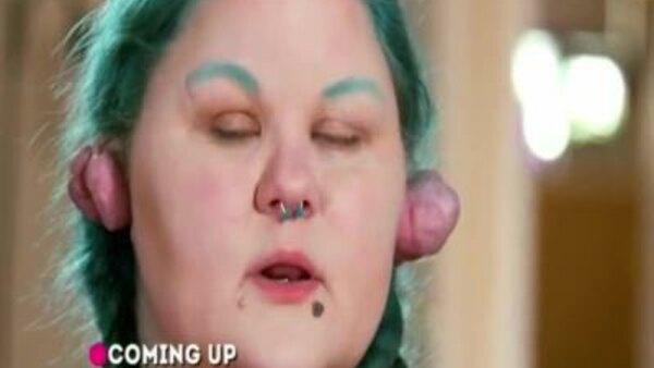 Dr Pimple Popper Season 3 Episode 1
