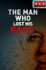 The Man Who Lost His Face