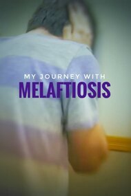 My Journey with Melaftiosis